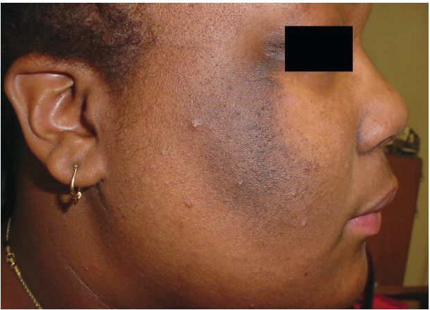 Acanthosis Nigricans  - The Warning Sign To Early Unset Diabetes And Other Health Issues - http://urbangyal.com/acanthosis-nigricans-the-warning-sign-to-early-unset-diabetes-and-other-health-issues/