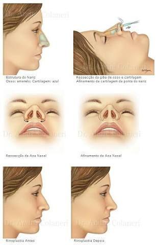 O que é a cirurgia de rinoplastia? minutoenfermagem.com.br