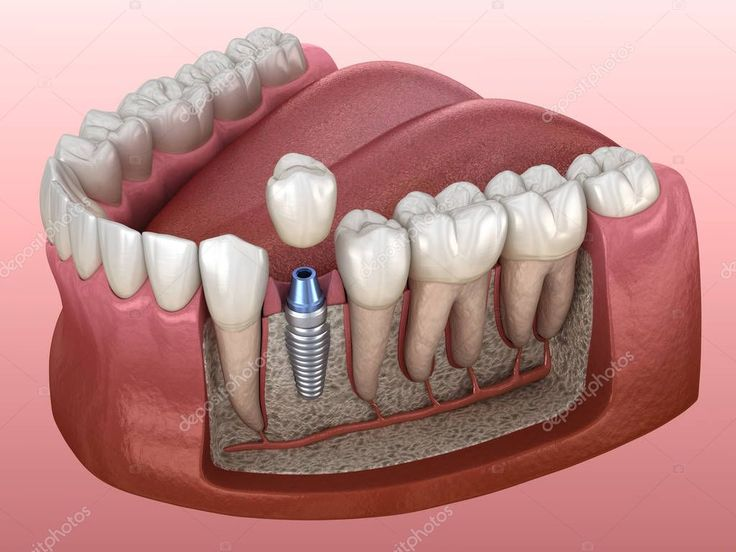 Premolar Tooth Crown Installation Implant Abutment