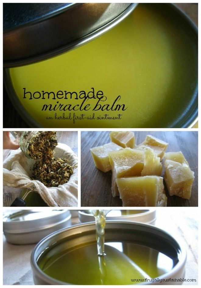 Make your own Miracle Balm by Frugally Sustainable- Based on the properties of the oils and herbs used in this balm, it has the power to heal: -eczema -psoriasis -topical thrush -inflammation -itching -slow-healing wounds -cuts, scraps, and bruises -bug bites and stings -burns -rashes