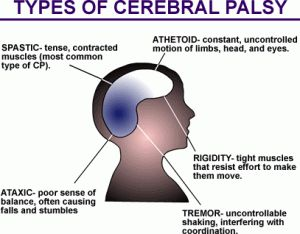 Spastic cerebral palsy is the predominant form, affecting about 70% of patients. This form of the disease is characterized by hyperactive deep tendon reflexes, increased stretch reflexes, rapid alternating muscle contraction and relaxation, muscle weakness, underdevelopment of affected limbs, muscle contraction in response to manipulation, and a tendency toward contractures.