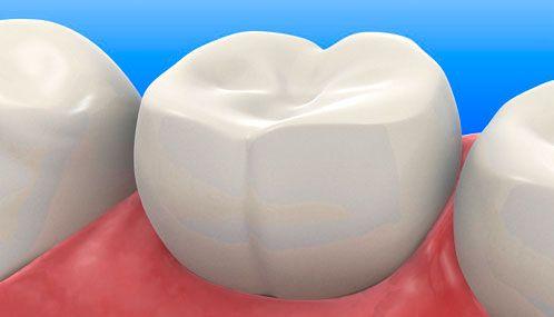 Ученые изобрели вечную пломбу, которая сама лечит зуб