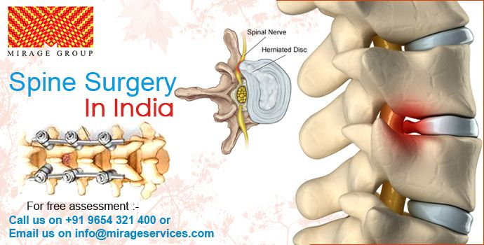 Spinal Cord Surgery : • Lumbar Spine Surgery • Lumbar surgery refers to any type of surgery in the lumbar spine, or lower back, between one or more of the L1-S1 levels. • Lumbar Fusion • The goal of a lumbar fusion is to stop the pain at a painful motion segment in the lower back. Most commonly, this type of surgery is performed for pain and disability caused by lumbar degenerative disc disease or a spondylolisthesis. • Lumbar Decompression • The goal of a decompression surgery is usually to…