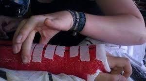 Resultado de imagen para brazo enyesado