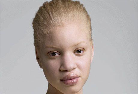 images nude albino females