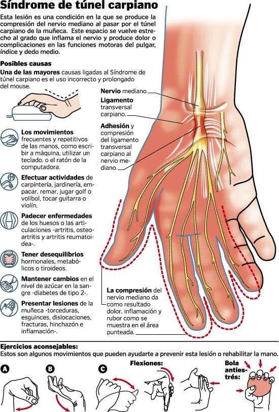 El síndrome del ratón o síndrome del túnel carpiano ya es una lesión de nuestro tiempo que puede causar dolor en el dorso de la mano, calambres en los codos y hormigueo en los dedos.  #salud #raton #lesion #ArvilaMagna #infografia #osteopatia #fisioterapia