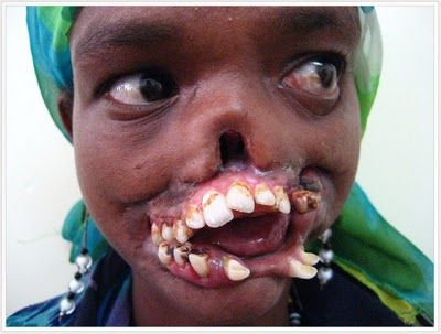 Cancrum Oris, commonly known as Noma, is gangrene of the face, and for some reason it affects the children more often than adults. It eats away the the tissues and musculature around the jaws