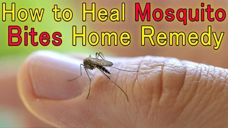 Best Home Remedies For Mosquito Bites.
