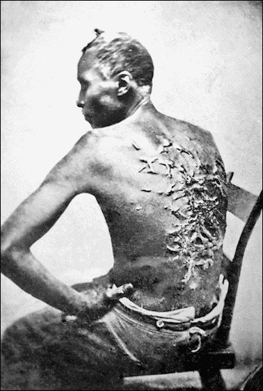 A Slave Shows His Scars From Being Whipped Baton Rouge
