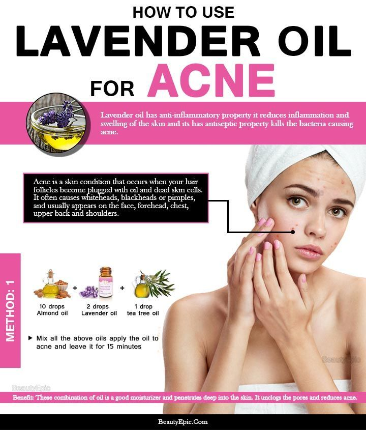 How To Use Lavender Oil To Clear Your Acne Acne Oil Essential Oils Pimples Oils For Skin