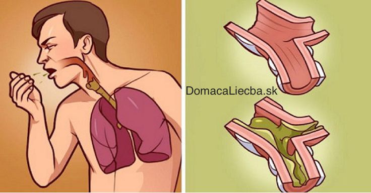 Tvorba hlienov v pľúcach dokáže riadne sťažiť dýchanie a znepríjemniť celý deň. Keď vás nabudúce zastihnú, určite skúste tento recept.