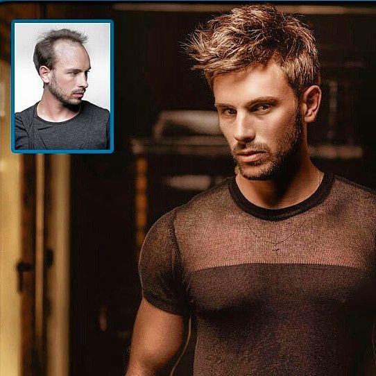 Demo hair protez saç ile özlem duyduğunuz saçlarınıza kavuşmanız artık mümkün…Merkezimizde uygulanan protez saçlar %100 insan saçı olmakta ve kullanıcılarımızın hayatına inanılmaz kolaylıklar sağlamaktadır.Merkezimize gelen protez saç örnekleri ABD laboratuarlarında test edilip insan sağlığına hiçbir şekilde zarar vermediği tespit edilmiştir.Bununla beraber ABD 'de ortak işbirliği yaptığımız NEWIMAGE firması ile beraber Türkiye'ye tamamen kopyalama sistemi sunmaktayız.#demohair