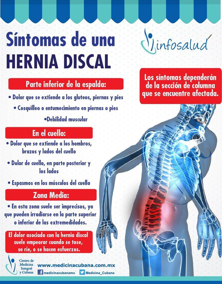 Las hernias discales son una de las causas más comunes de dolor de espalda. Los síntomas dependerán de la sección de columna que se encuentre afectada.