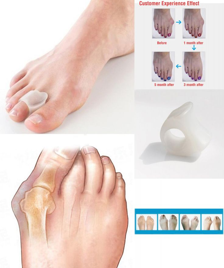 [Visit to Buy] Hot-Free Silicone 1Pair Gel Toe Separator/Gel Toe Bunion Guard/Bunion Pain Relief Toe Protector Hallux Valgus Correction Posture #Advertisement