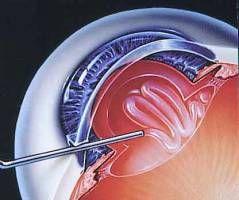 Katarakt Ameliyatı - Katarakt Ameliyatı, lazer göz ameliyatı, smile lazer, yakın gözlük ameliyatı, multifokal göz içi lens