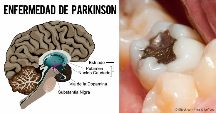 El desencadenante escondido de la enfermedad de Alzheimer y Parkinson que porta el 75% de las personas. http://articulos.mercola.com/sitios/articulos/archivo/2015/11/17/peligros-y-contaminacion-del-mercurio.aspx