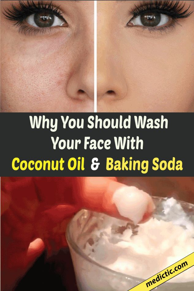 Baking Soda and Coconut Oil Face Mask For Acne Scars