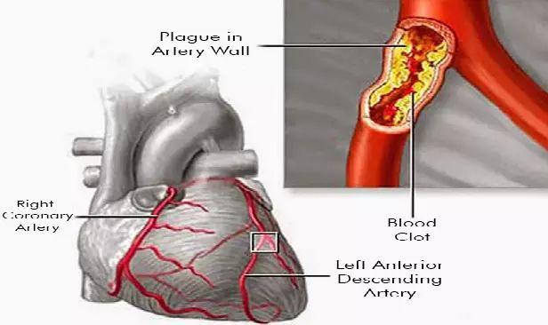 Debido a que los vasos sanguíneos son importantes para nuestra salud y es muy importante p