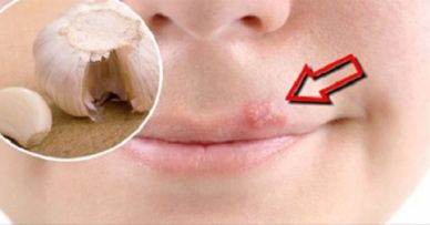 Home Remedies to Quickly relieve Cold Sores - remedieshome.com