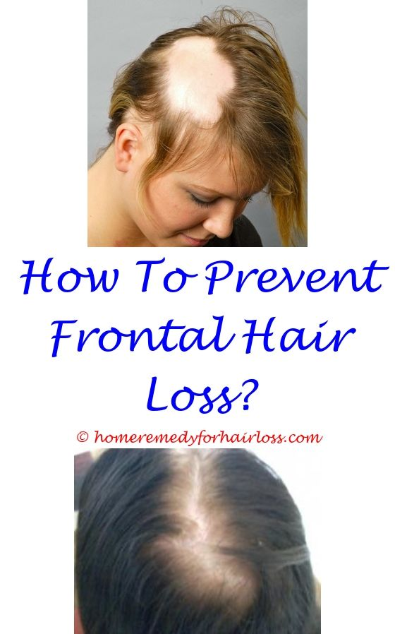 15 best Reasons For Hair Loss images on Pinterest | Beauty tricks ...