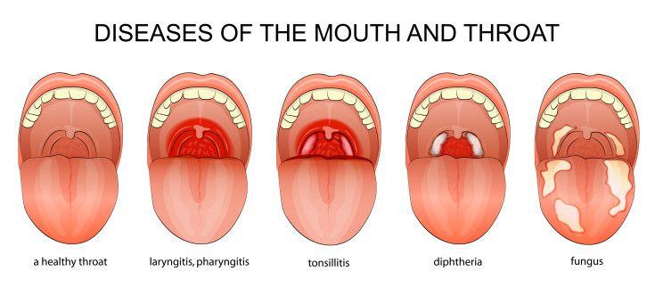 inflammation i halsen