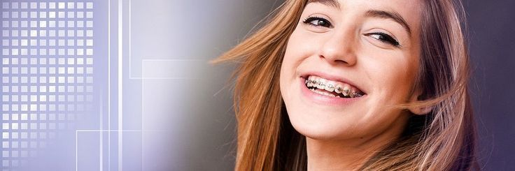 The initial time you go to an orthodontist in Richmond, you can expect a detailed checking of your mouth with the purpose of judge your situation and your needs for orthodontic treatment or not.