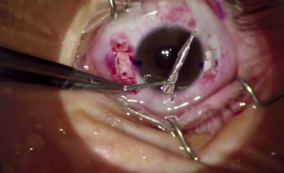 Per la prima volta (09.2015) impiantata Lente a Sospensione Sclerale Sutureless Torica