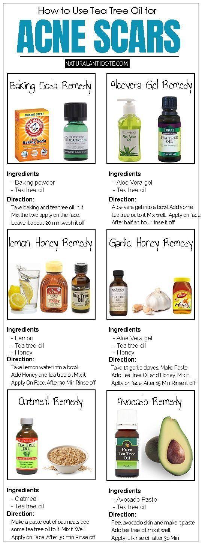 Wie man Teebaumöl für Akne und Aknenarben effekt…