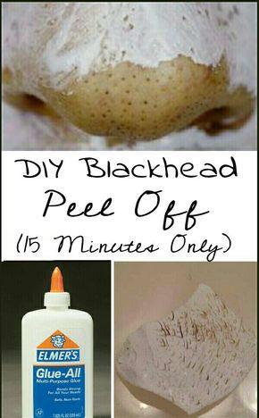 One of the easiest & quickest way to get rid of blackheads. So gonna try. No more expensive scrubs or strips. I'm definitely pinning for later.