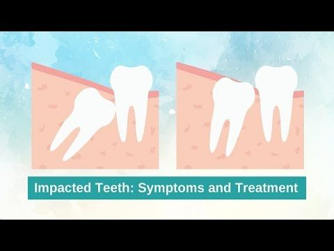 What are the Warning Signs of Impacted Teeth? www.q1dental.com.au