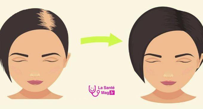 Les cheveux font partie des attributs physiques les plus appréciés. Ils peuvent augmenter la confiance en soi, particulièrement parce que c'est l'une des premières que l'on remarque sur une personne. Cependant, il n'est pas toujours facile d'avoir des cheveux beaux et sains. Si vous commencez à perdre vos cheveux, cela peut avoir des répercussions importantes …