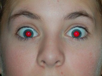 What Causes Red Eyes In Photographs