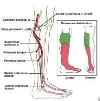 Peronial Nerve damage Foot Drop