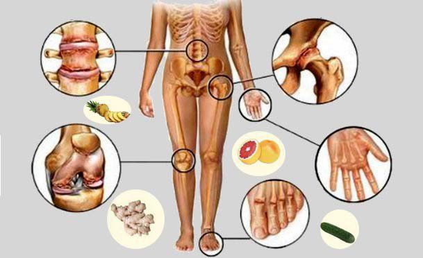 ÍGY KERÜLHETED EL A NAGY FÁJDALMAKAT! A húgysav erős ízületi fájdalmakat, ráadásul köszvényt, ízületi gyulladást, sőt veseelégtelenséget is okozhat. Ha nem kezeli időben egy képzett orvos, a fájdalom krónikussá válhat, köszvényt, krónikus ízületi gyulladást okozva. Van azonban megoldás!