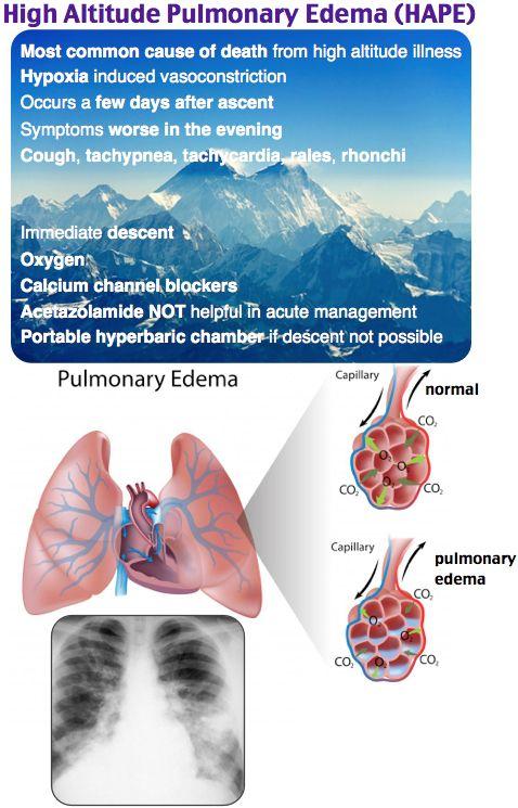high altitude pulmonary edema - pulm - ER - Rosh Review