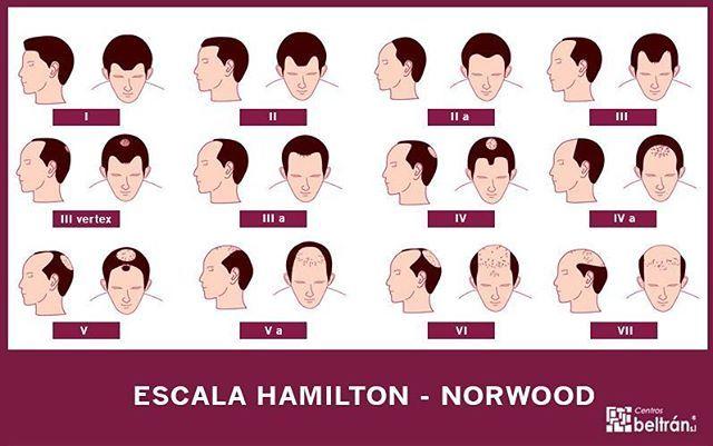 ¿Sabías que la escala de Hamilton-Norwood mide el grado de la #alopecia #androgenética en #hombres? ¡Estos son los diferentes niveles!…