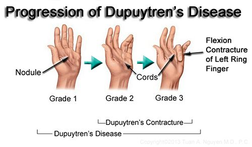 What Causes Contractures | Dupuytren's Contracture Progression - Treatment By Needle Aponeurotomy