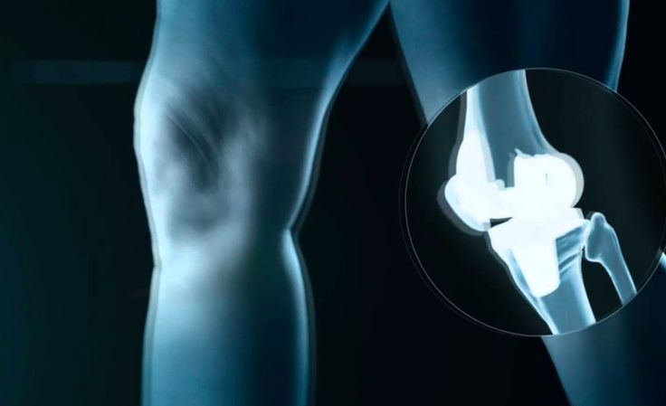 Expanded FDA Safety Claim for Zimmer Biomet's Knee Therapy - http://www.orthospinenews.com/expanded-fda-safety-claim-for-zimmer-biomets-knee-therapy/
