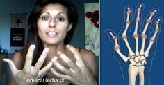 Táto žena objavila náramne jednoduchý liek na artritídu. Dnes sa oň s vami rada podelí