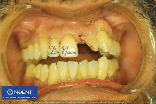 N-Dent -Best Dental Clinic in Chennai: Dental Implants for Single tooth Replacement  - N-...