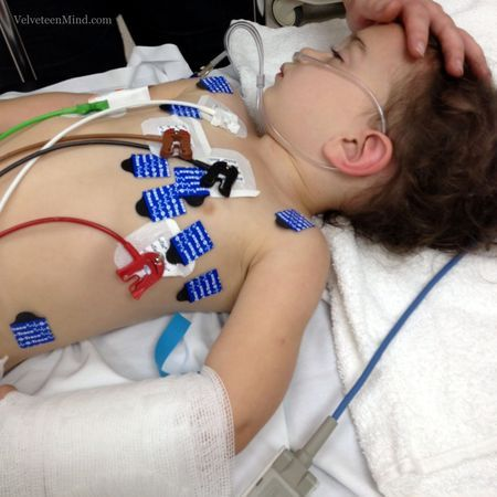 A mother's story about her daughters series of febrile seizures and what to look out for one
