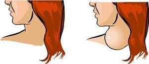 Thyroid Disease Symptoms: Enlarged Thyroid Gland