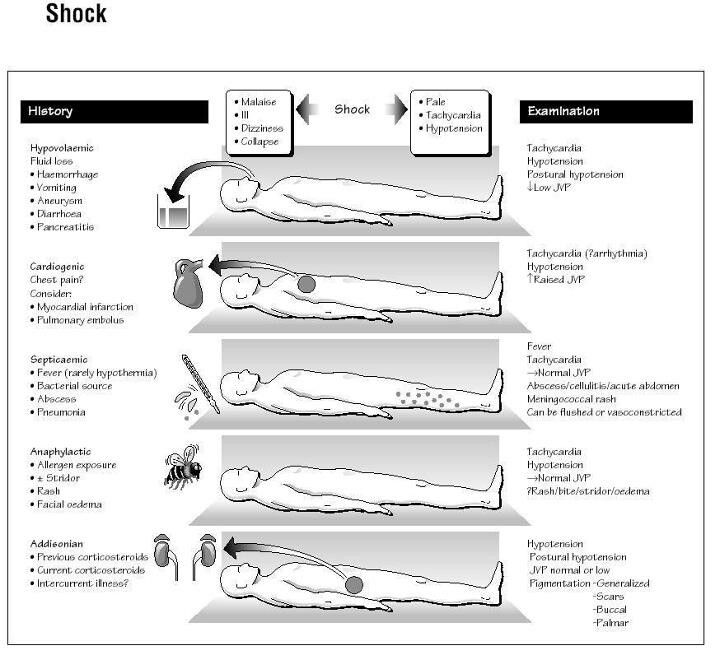 different types of shock and treatment pdf