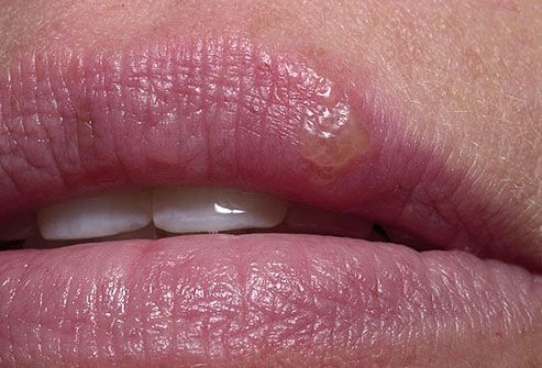 """Cold Sore  Problem: Your friend leans in and asks, """"What's that thing on your lip?"""" You're horrified. Solution: That red, blistery bump on your lip is a cold sore, caused by the herpes simplex virus 1. It should go away on its own in about a week. To ease the pain and burning, try a cool compress or put ice on it. Use lip balm to keep the area soft and prevent cracking. Hold off on kissing anyone -- cold sores are contagious."""