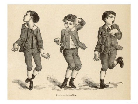 Boys Afflicted with Chorea Known as St. Vitus' Dance or as Danse de Saint-Guy in France Giclee Print at Art.com