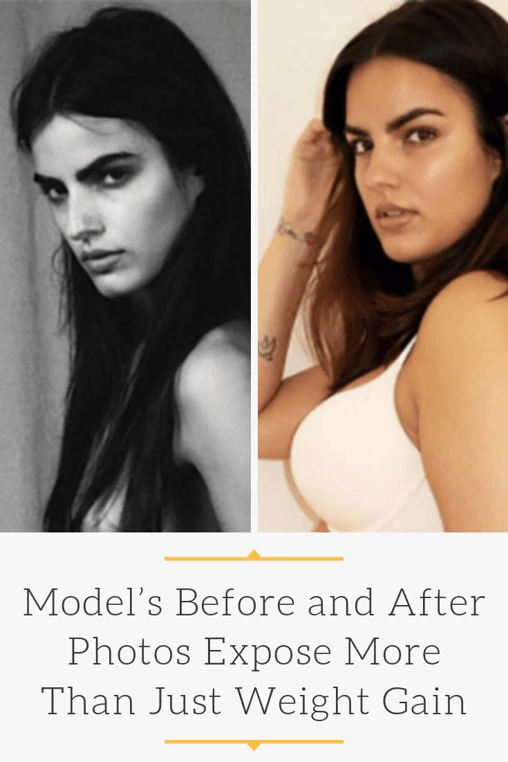 Model's Before and After Photos Expose More Than Just Weight Gain