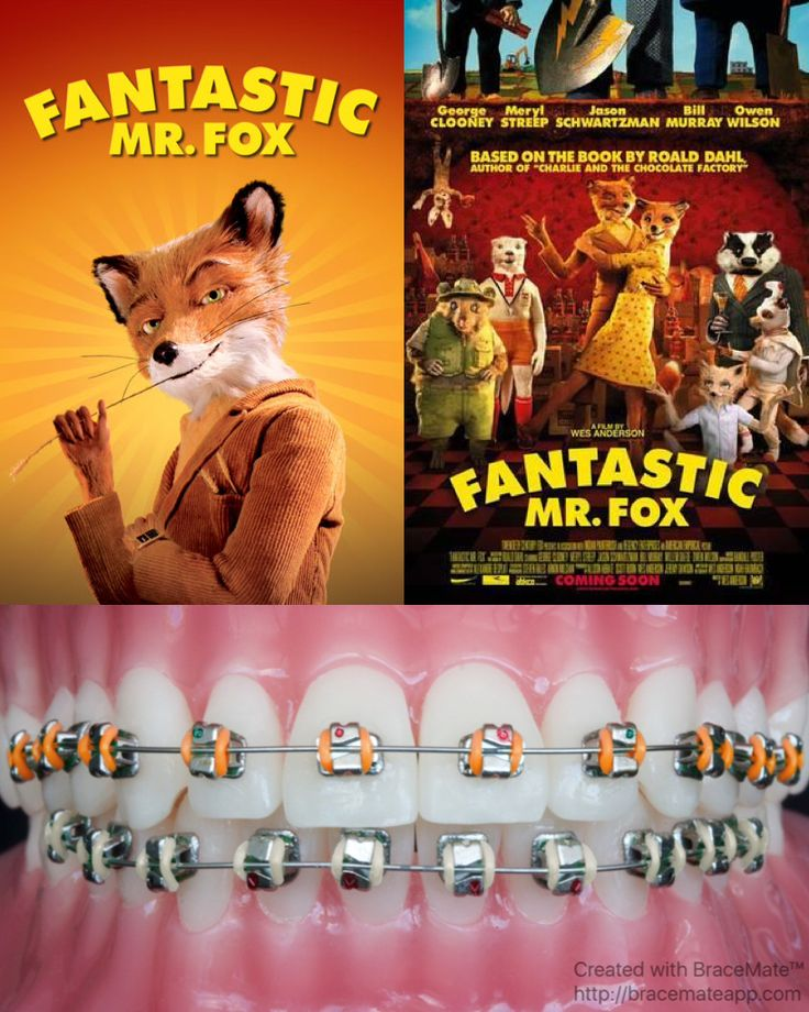#FantasticMrFox #Mrfox #fox #stopmotion #stopmotionanimation #roalddahl #georgeclooney #merylstreep #jasonschwartzman #billmurray #willemdafoe #michaelgambon #owenwilson #wesanderson #foxes #animated #comedy #animation #braces #bracescolours #bracescolor #orthodontics #orthodontist #ortho #colour #colors #llandaff #cardiff #wales #uk