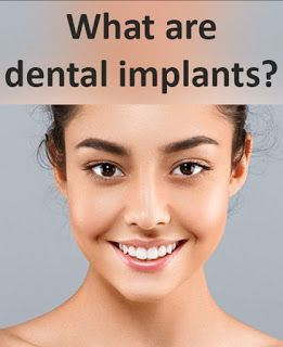 Dental Implant Bangalore: All On 4 Dental Implants