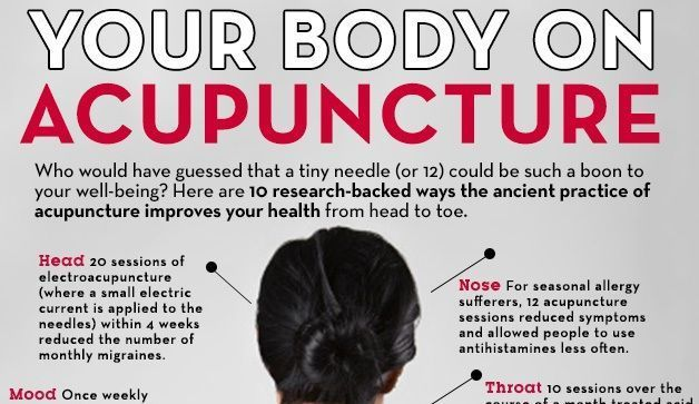 10 Pretty Fantastic Reasons To Try Acupuncture prevention.com #acupuncturebackpain
