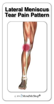 51 best meniscus tear rehab images on pinterest health for Exterior knee pain